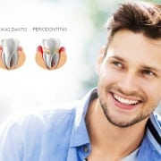 Periodontitas burnos higiena 40 eur
