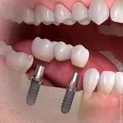 implantas keli dantys